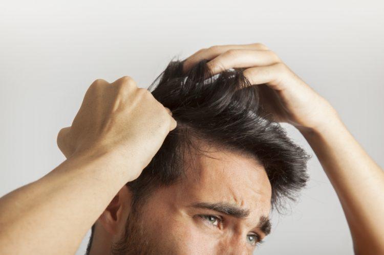 38. What causes hair balding 1